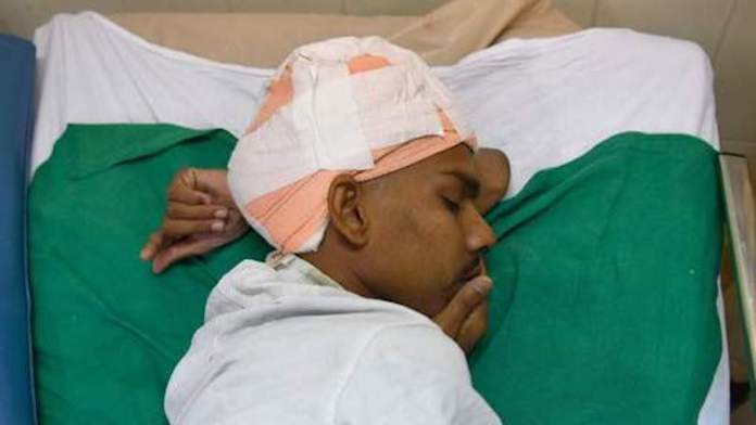 Une tumeur au cerveau de deux kilos opéré en Inde