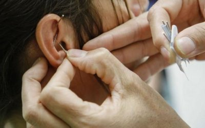Acupuncture helping addicts with recovery