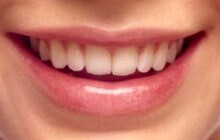 smiling teeth