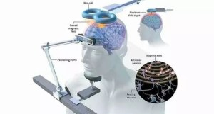 stimolazione magnetica transcranica acufene