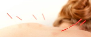 agopuntura acufene