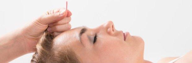 acupuncture for depression irvine