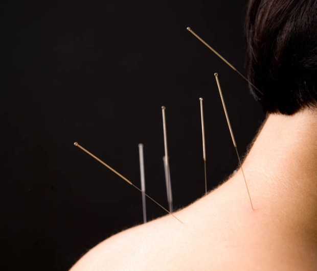 acupuncture for neck pain near me