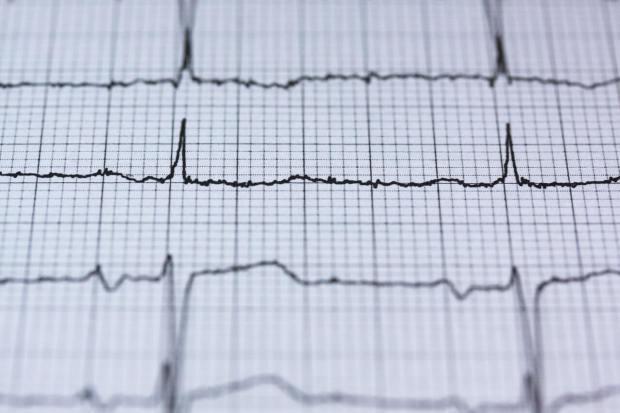 acupuncture heart disease irvine
