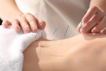 acupuncture for endometriosis near me