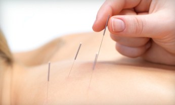 acupuncture for neuropathy near me