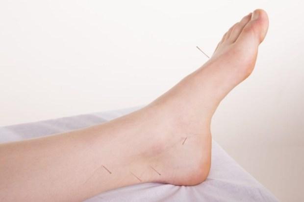 acupuncture for plantar fasciitis irvine