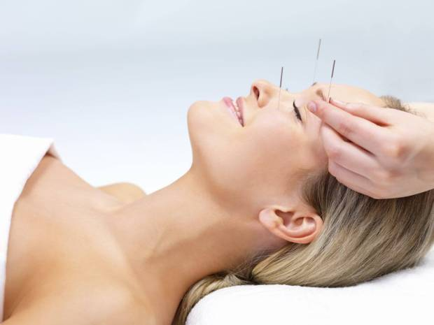acupuncture bell's palsy