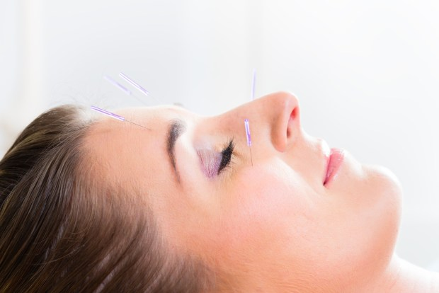 Acupuncture For Nasal and Eye Allergies