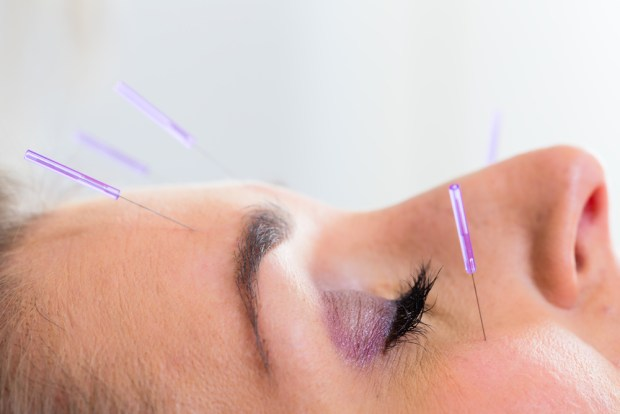 Acupuncture For Sinuses