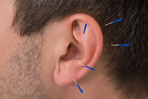 Acupuncture For Tinnitus (Ringing in Ears)