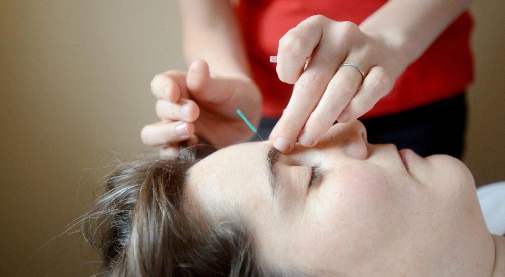 Acupuncture VT