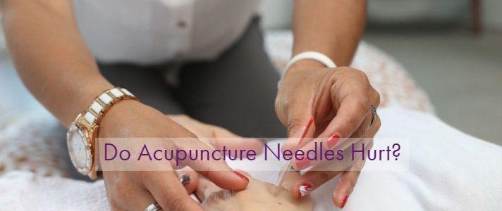 Do Acupuncture Needles Hurt?