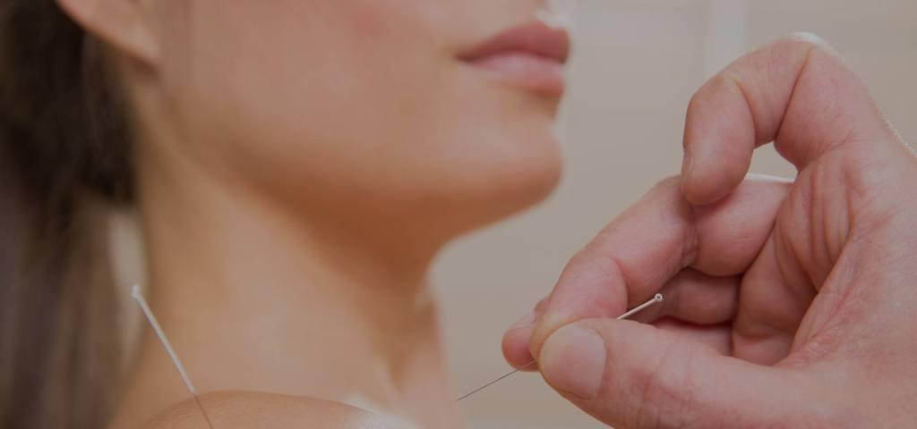 Sarasota Acupuncture