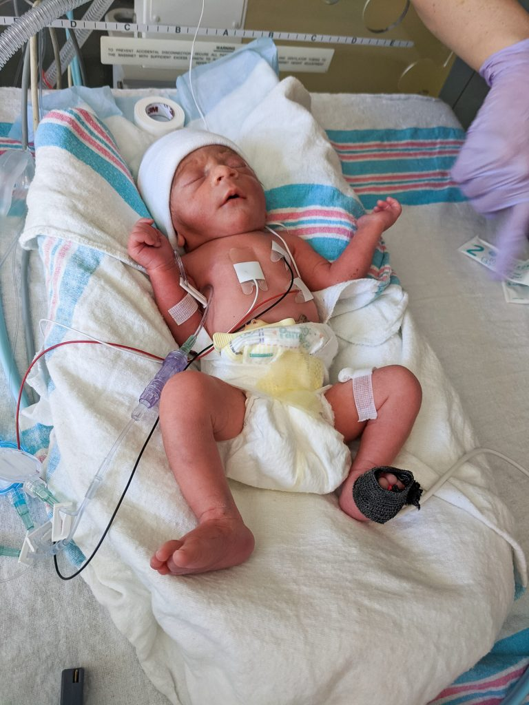 A small baby, born 9 weeks early, lays in the base of an incubator in the NICU. He has lead attached to his abdomin for monitoring, an IV on his arm, and a pulse ox on his foot.
