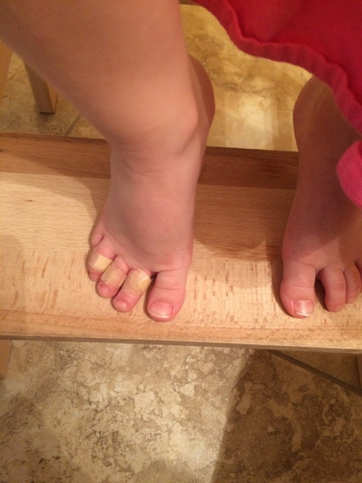 """Eliza's """"bonked"""" toes"""