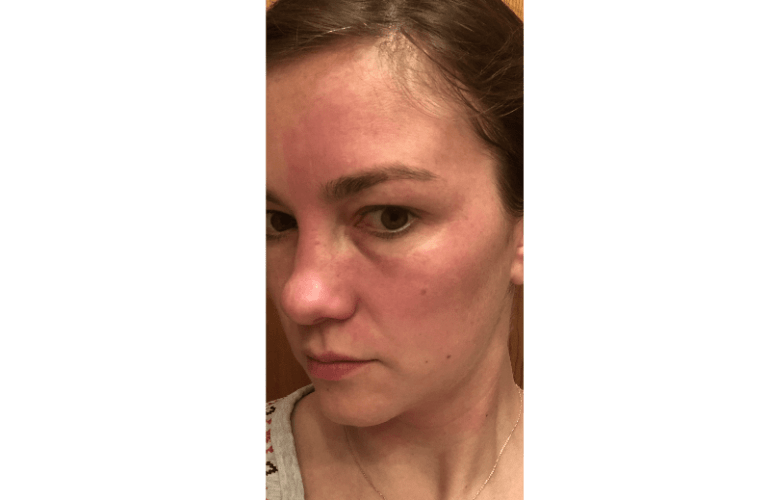 ada polla shows redness on her face