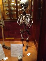 Achondroplastic Dwarf display at The Mütter Museum