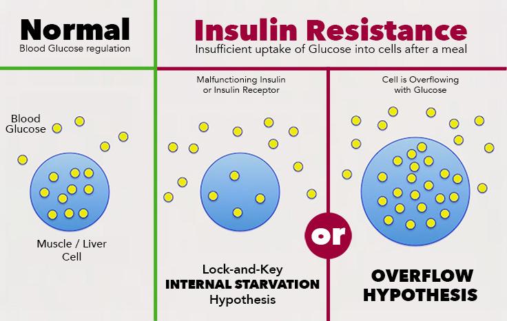 The Diabetes Paradigm - resistant vs overflowing