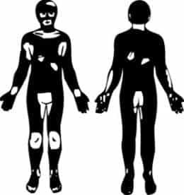vitiligo izvietojums