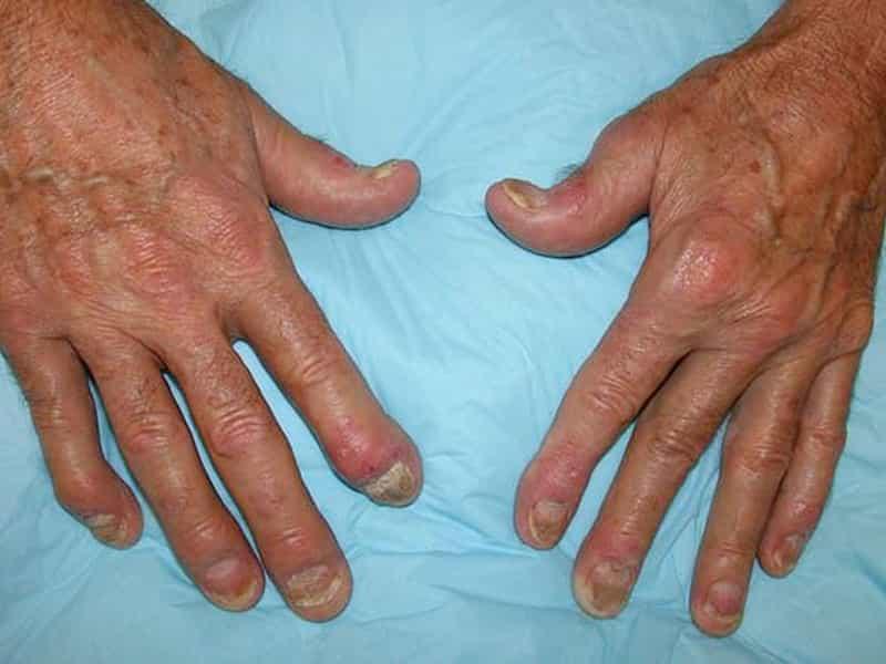 psoriatiskais artrits