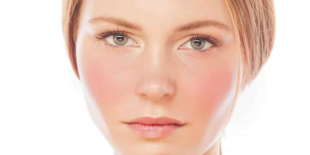 Sārtās sejas jeb rozācijas terapijas iespējas