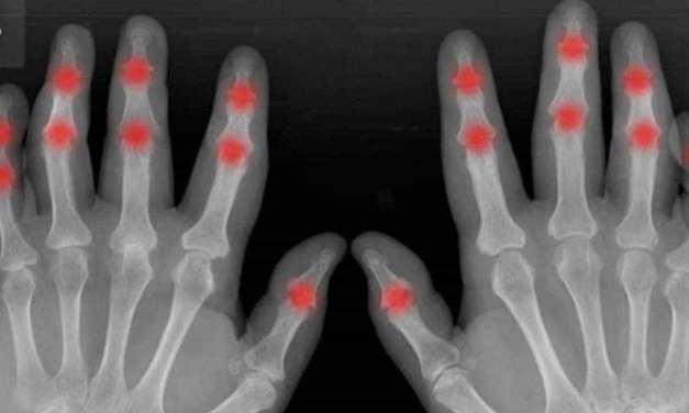 Psoriātiskais artrīts