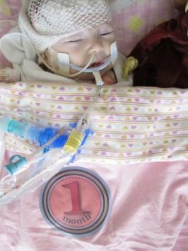 Addison at 1 month - 3 days post heart transplant