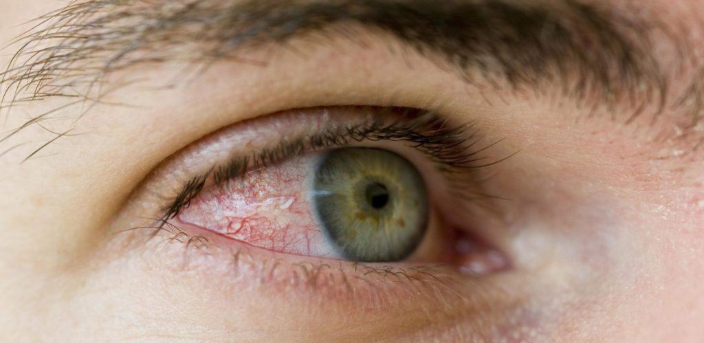 poate pierderea în greutate cauza pungilor de ochi