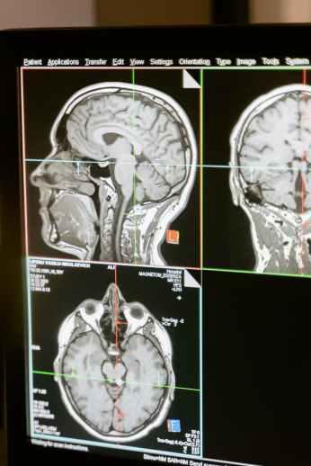 MRI Images of ADHD brain