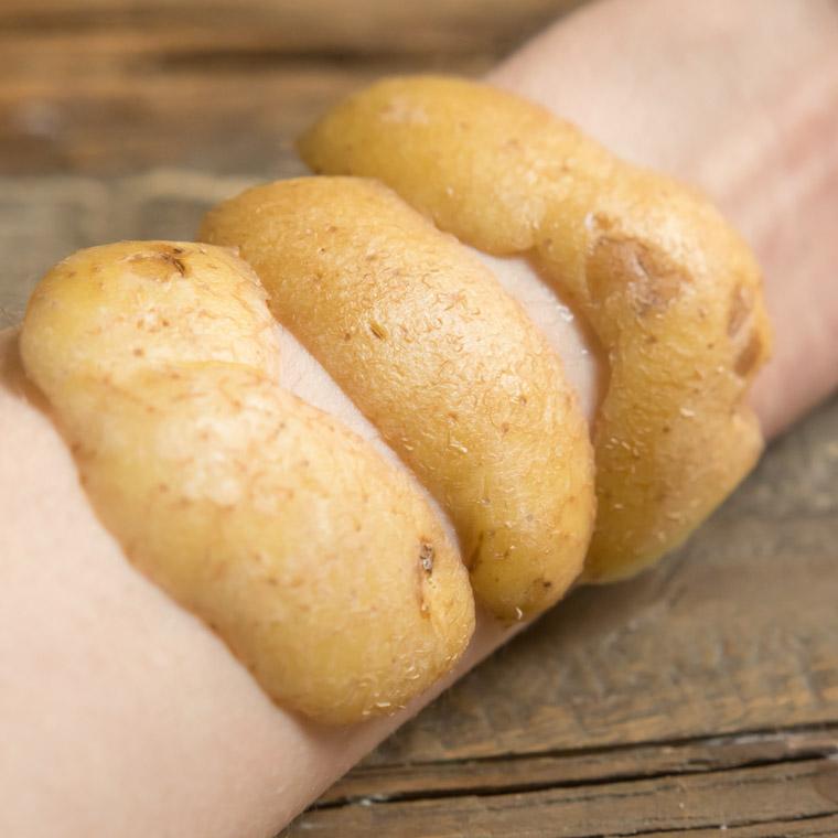 potatisskal lindrar solsveda