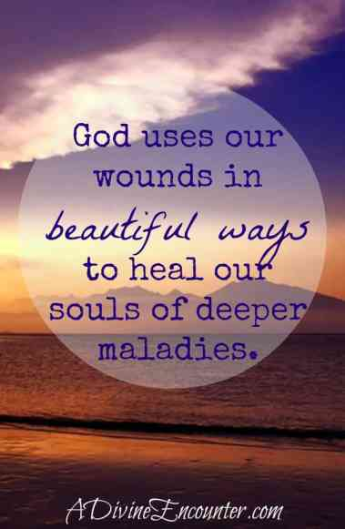 A personal look into deeper healing God brings from our wounds. (Isa. 53:5) https://adivineencounter.com/healing-in-the-wounds