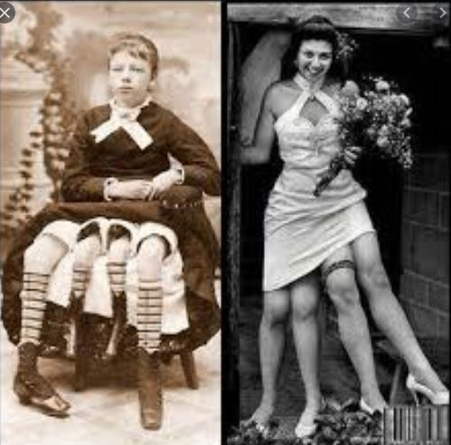 Meet Josephine Myrtle Corbin: The Lady with Two Separate Sets of Legs