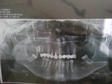 radiografie maxilar