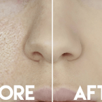 Open Pores Treatment in Delhi