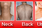 best-laser-hair-removal-in-delhi
