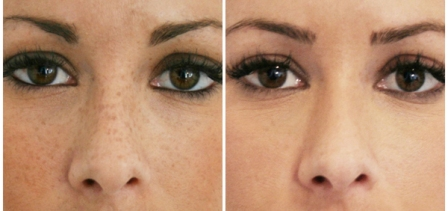 Skin Specialist In Delhi, Get the Best Offers and Services
