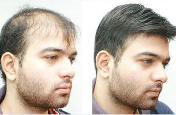 Hair Loss Treatment in Delhi, Best Five Therapies to Get the Fuller Head