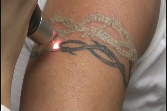 Tattoo Removal Question And Answer