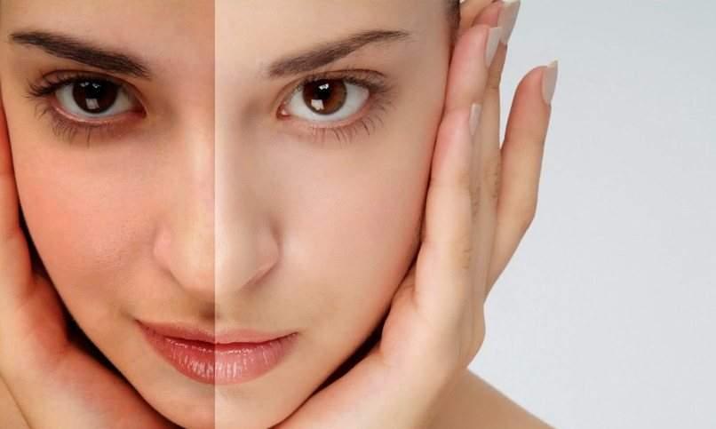 Tanning Treatment in Delhi