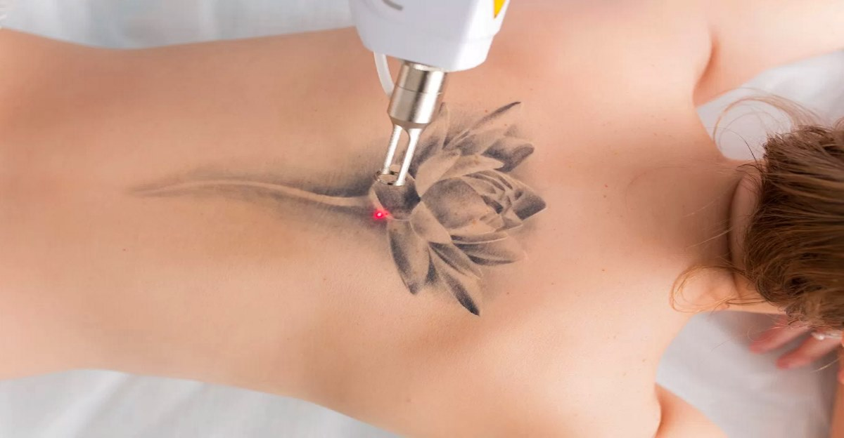 Laser Tattoo Removal, Get the Answer of most asked Questions