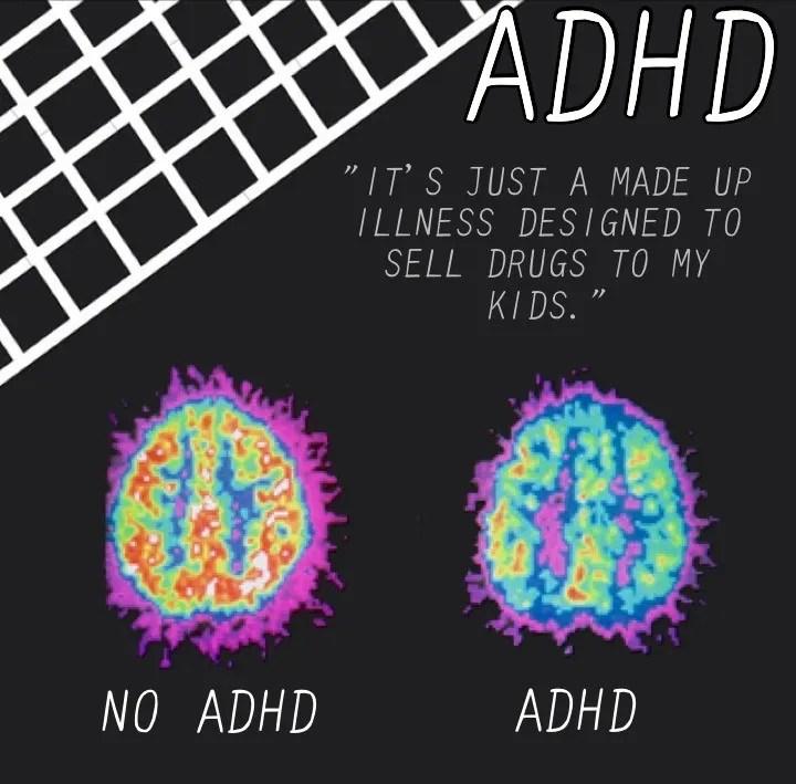 ADHD Brain Scan