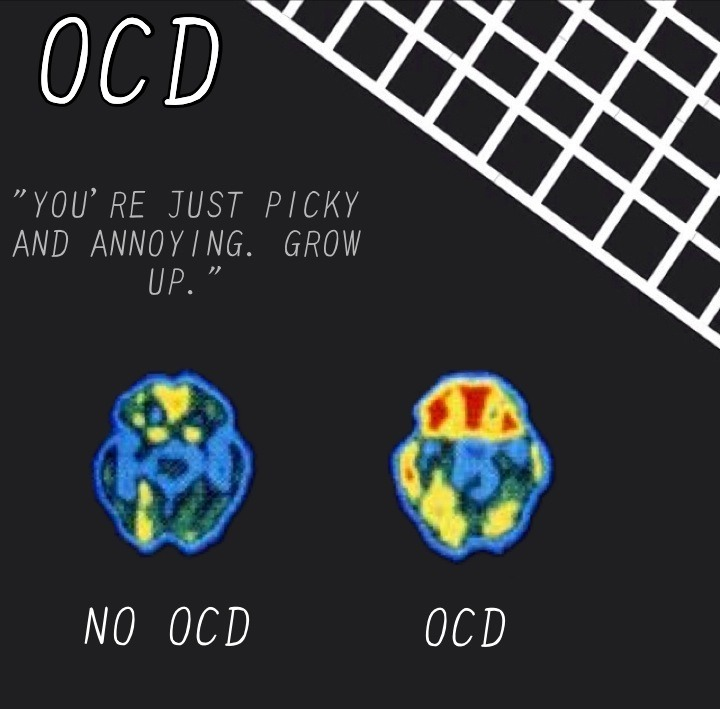 OCD Brain Scan