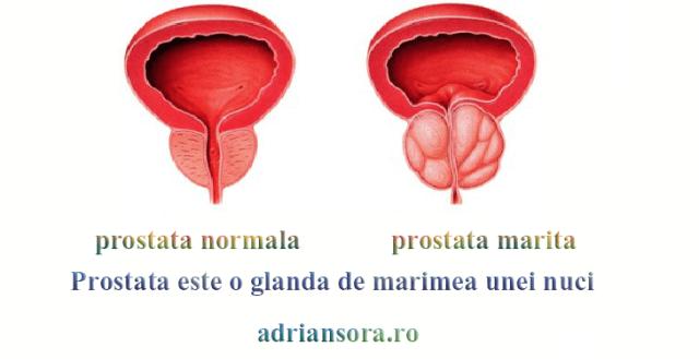 Aparatul respirator la adenomului de prostata