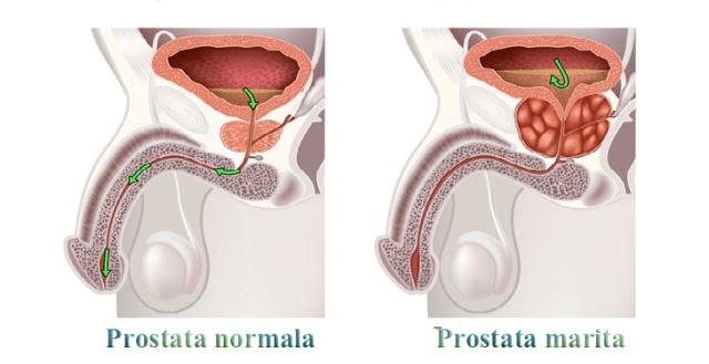 prostata normală și prostata mărită