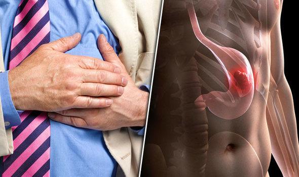 cancerul de stomac