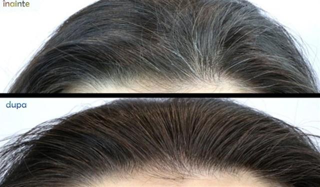 fire de păr alb