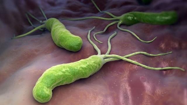 infecţia cu Helicobacter pylori