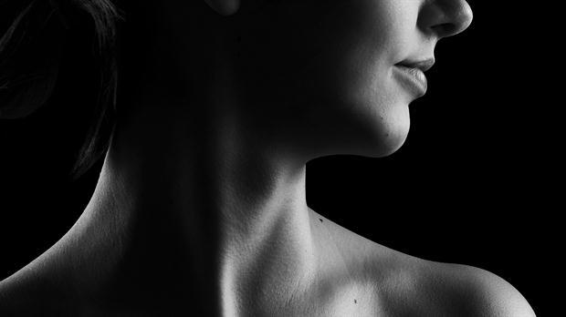 9 de cada 10 casos de hipotiroidismo se dan en mujeres –Dr. Daniel López Rosetti
