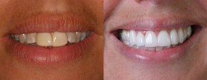zoom-whitening-before-after-of-teeth